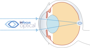 Accommodating Hyperopic Eye