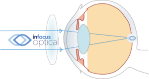 Corrected Hyperopic Eye