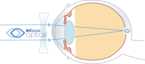 Corrected Myopic Eye