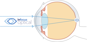 Normal Emmetropic Eye