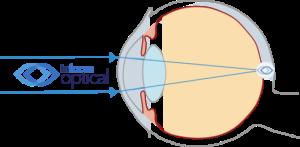 Normal Emmetropic Eye