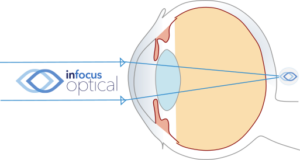 Uncorrected Hyperopic Eye