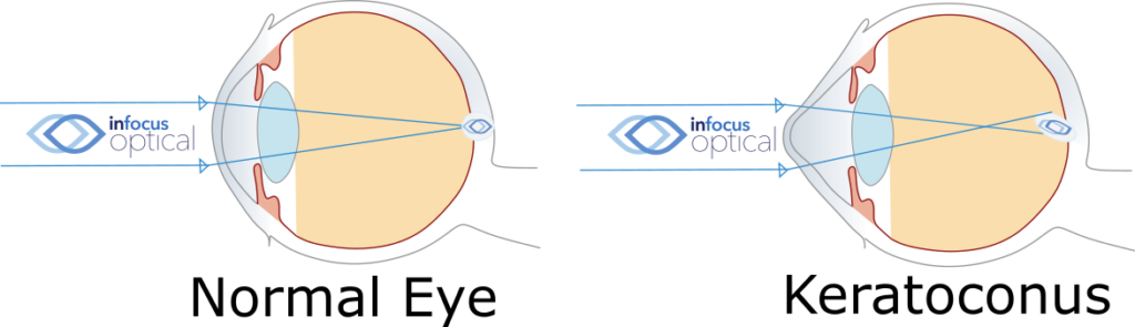 Keratoconus Eye Shape Comparison
