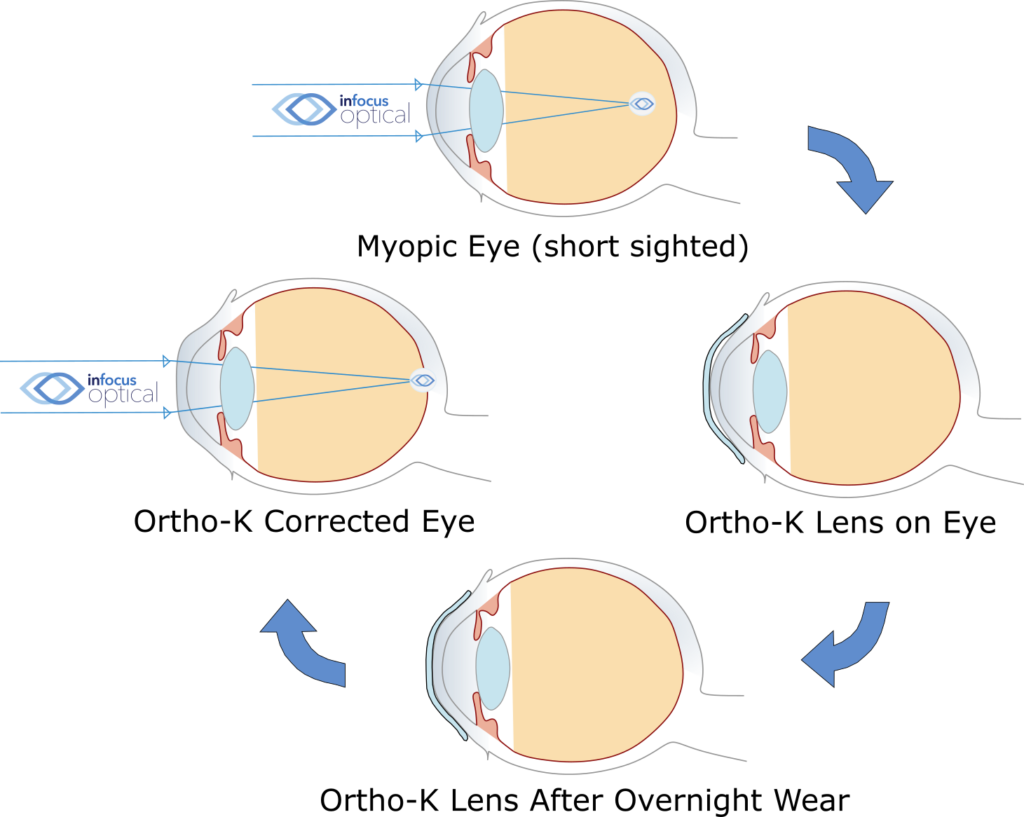 How Orthokeratology (Ortho-K) Works